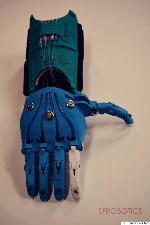 prótese robótica Frozen
