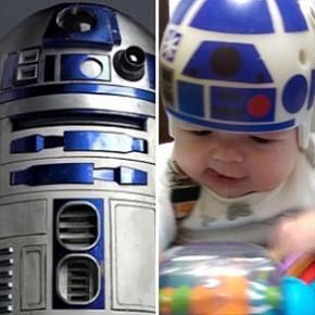 Durante 1 ano pai customizou capacete corretivo de seu filho inspirado em Star Wars